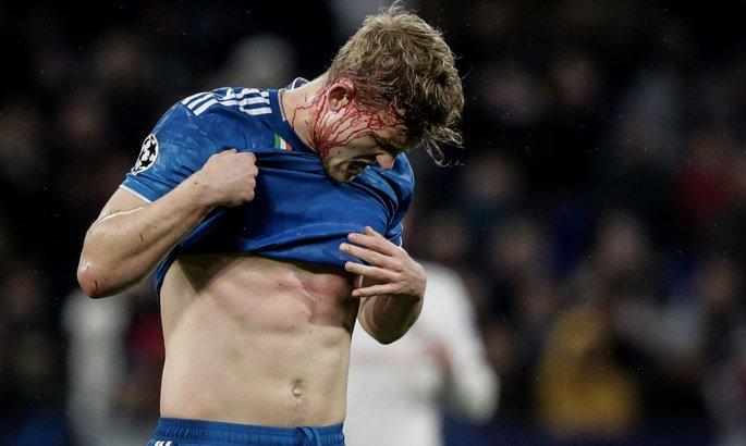 Де Лигту разбили голову в игре с Лионом - защитник все равно продолжил играть