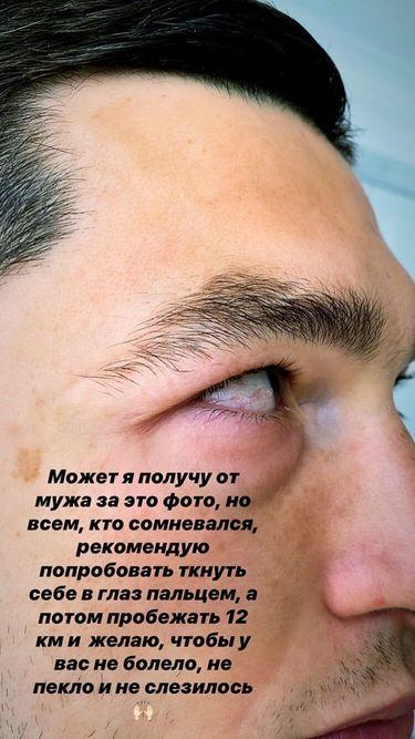 Жена Степаненко выложила фото его повреждения после матча с Динамо - изображение 1