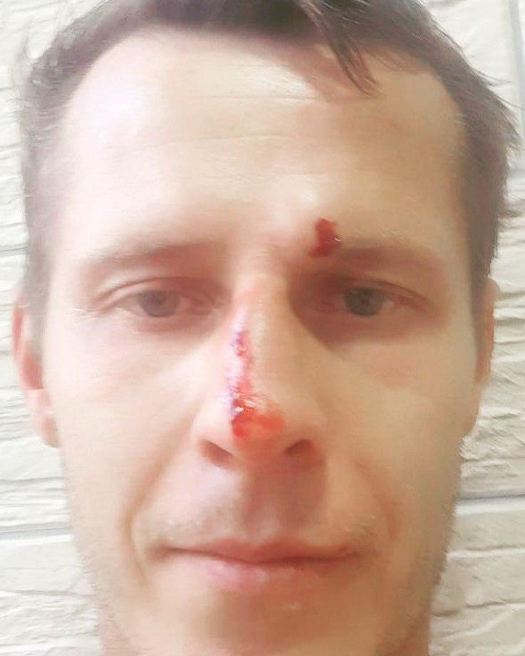 Избитый судья Юрий Иванов написал заявление на президента Агробизнеса - изображение 2