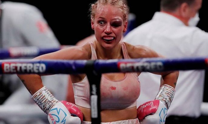 Секс-символ бокса получила жуткую травму глаза