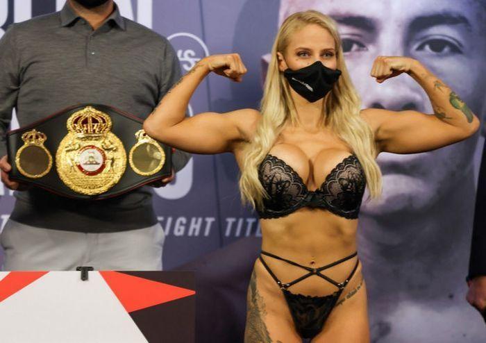 Секс-символ бокса получила жуткую травму глаза - изображение 1