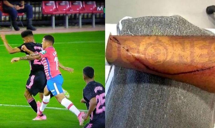 Жуткая травма защитника Реала: обидчик не получил даже желтой карточки