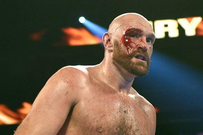 Уайлдер провел лучший бой в карьере, но Фьюри был на другом уровне - изображение 1